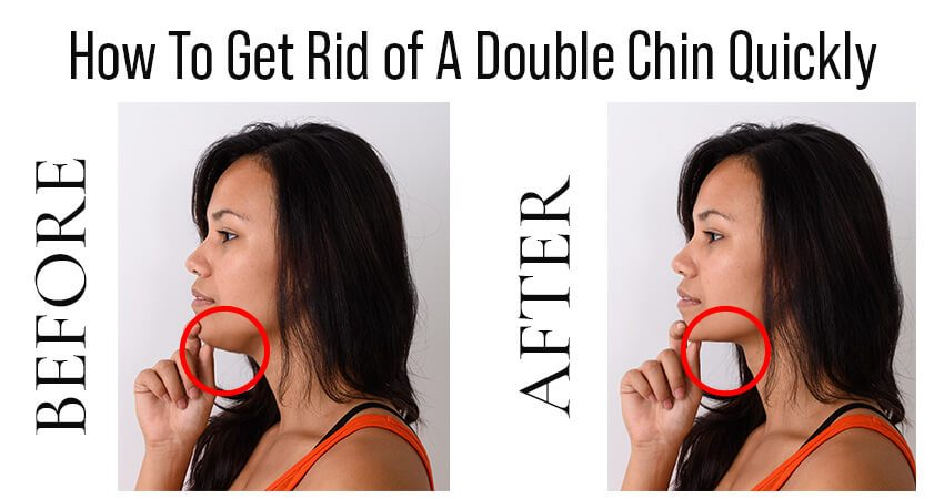 How to Get Rid of Double Chin Fast?