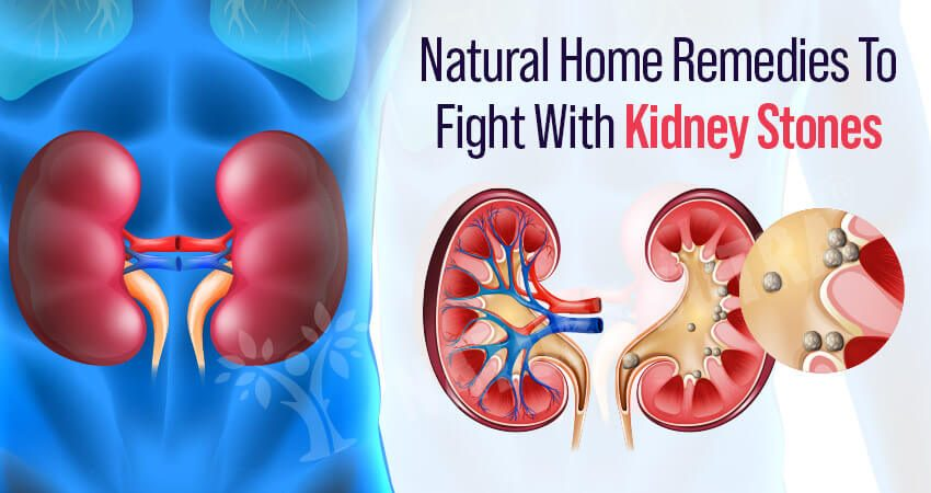 Home Natural Remedies To Fight With Kidney Stones