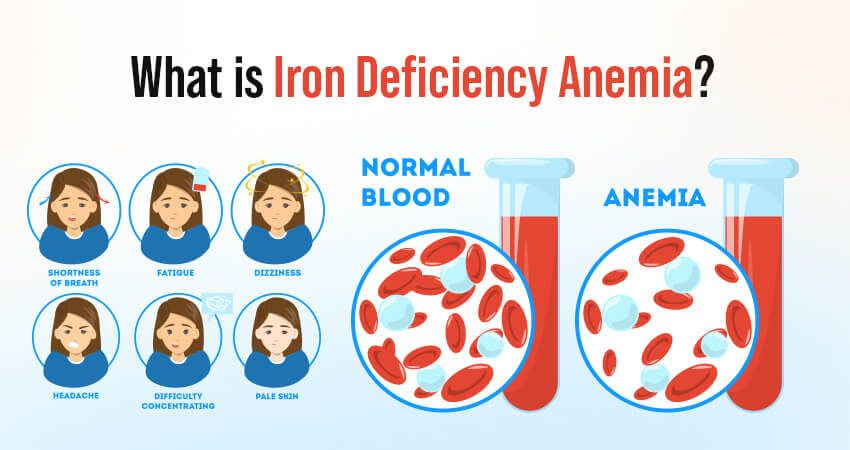 What is Iron Deficiency Anemia? See all the Symptoms, Causes, and Treatment of it.